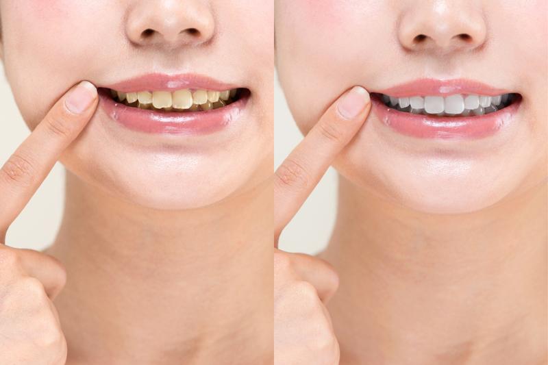 アッ!と驚く白い歯に✨