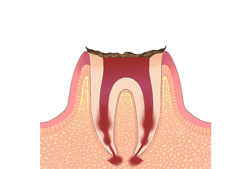 歯根のみが残っている歯