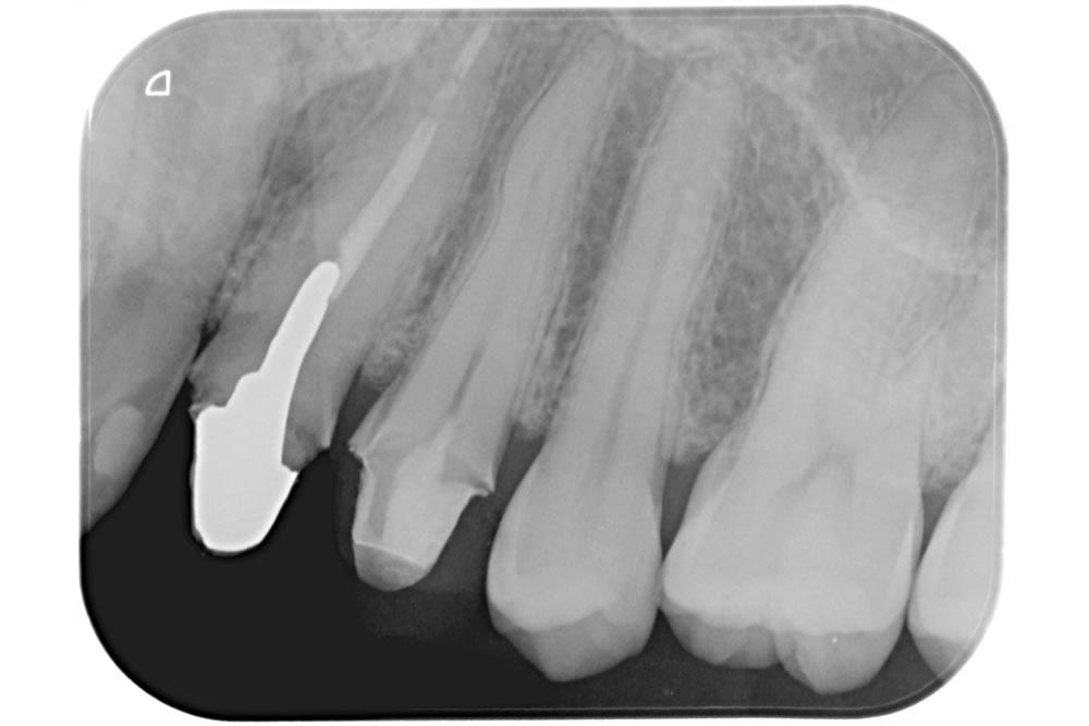生活歯髄断髄法(バイタルパルプセラピー)の症例