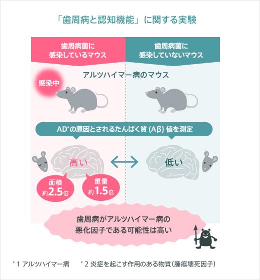 歯周病菌が『アルツハイマー型認知症』の進行促進に関係!?!